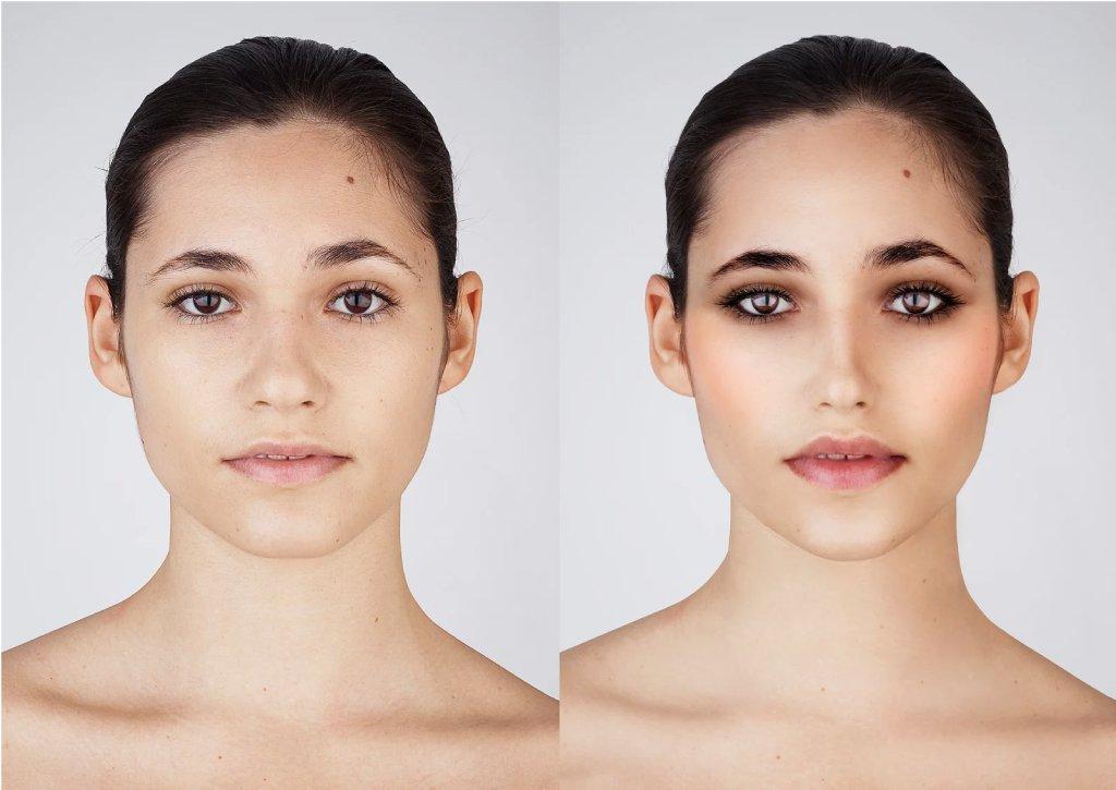 snapchat plastic surgeon image